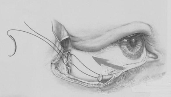 眼瞼外翻矯治手術