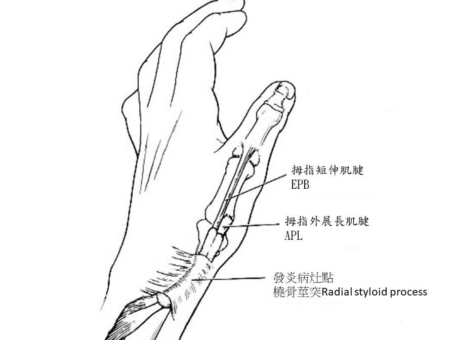 媽媽手病灶解剖圖