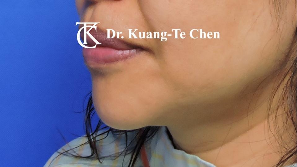 嘴邊下垂輪廓線微創雷射溶脂手術陳廣得醫師Case2 術前-1