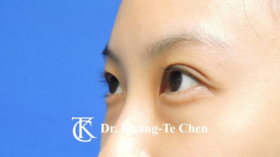 眼袋內開淚溝補脂Case 3 術前-2