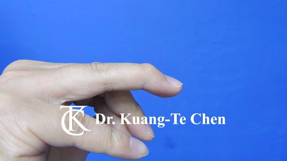 鎚狀指手術Case 1 術前-1
