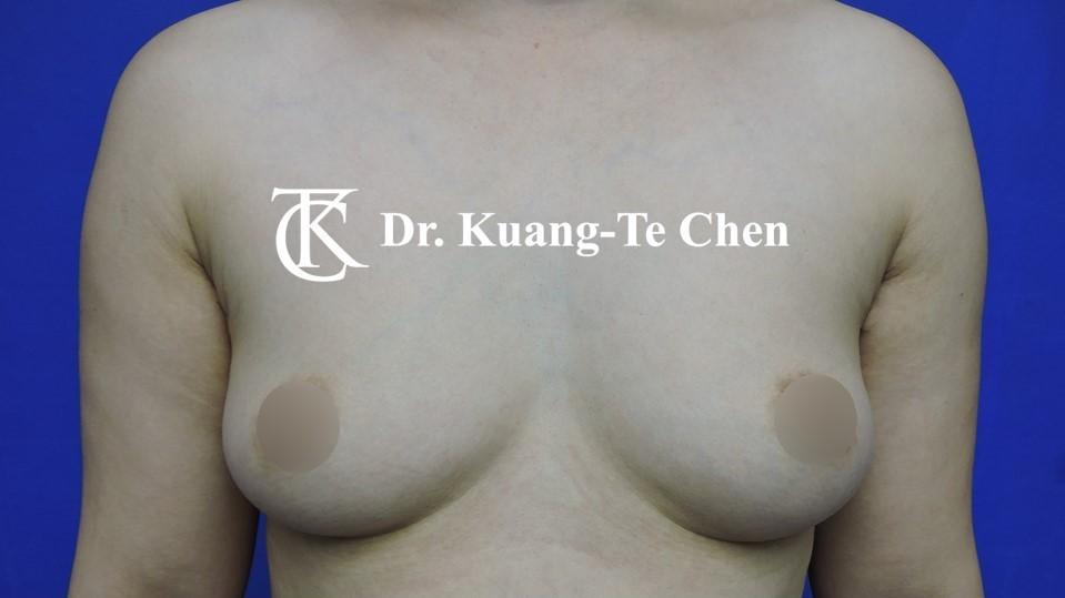陳廣得醫師魔滴果凍內視鏡隆乳Case3術前-1