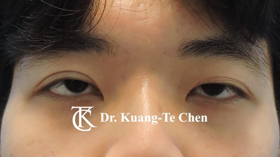 嚴重雙側提眼肌無力術前16