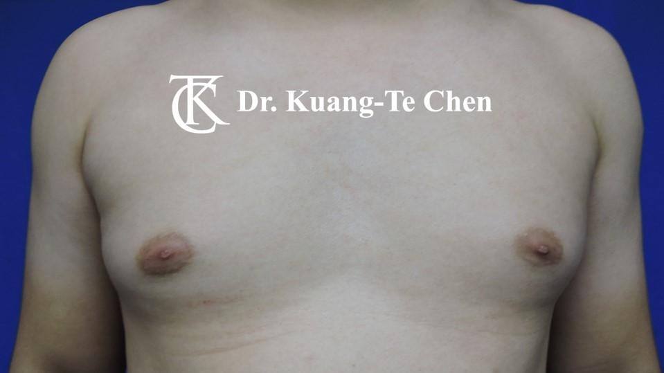 男性女乳症手術術前 陳廣得醫師 17