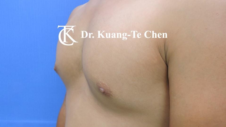 男性女乳症手術術前 陳廣得醫師 21