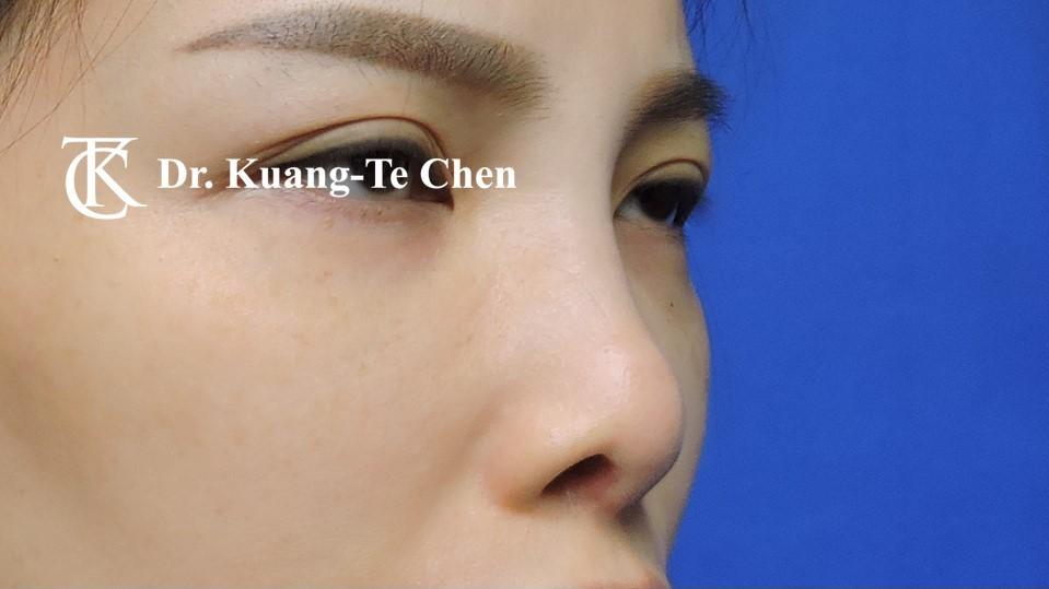 二次隆鼻手術 Case 2 術前-3