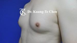 男性女乳症手術術前 陳廣得專業整形10