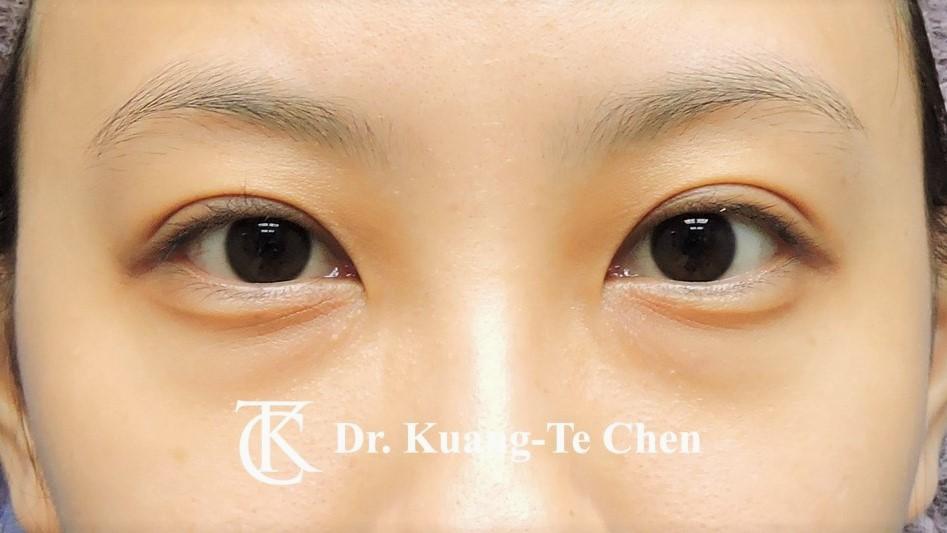 眼袋內開淚溝補脂Case 3 術前-1