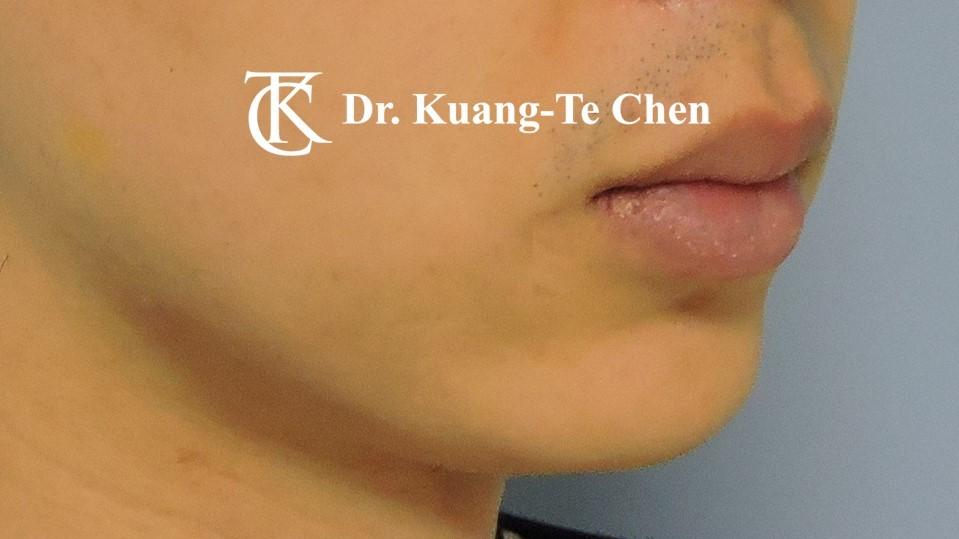 嘴邊下垂輪廓線微創雷射溶脂手術陳廣得醫師Case3 術後-2