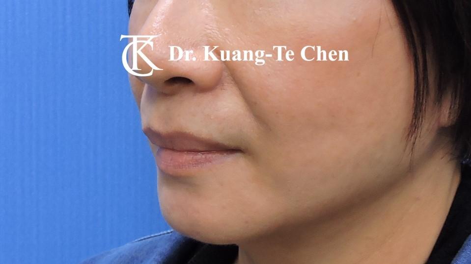 中臉拉皮手術 陳廣得醫師專業拉皮 Case 2 術後-1