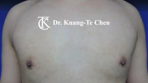 嚴重男性女乳症手術術後 陳廣得專業整形 14