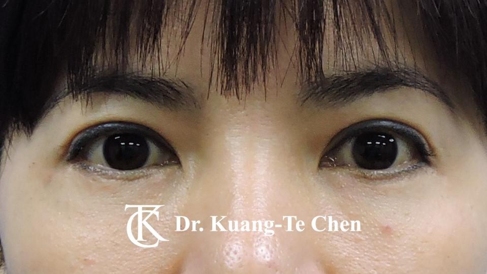 眼袋外開脂肪下推+割雙眼皮Case 2 術後半年-1