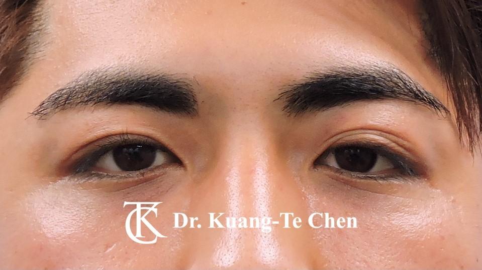 眼袋內開淚溝補脂Case 1 術後-1