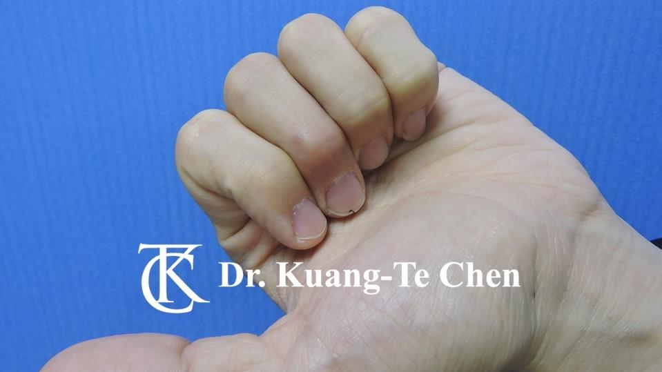 鎚狀指手術Case 2 術後-3