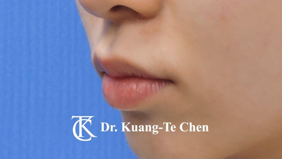 Case 5 上唇唇珠手術後-1