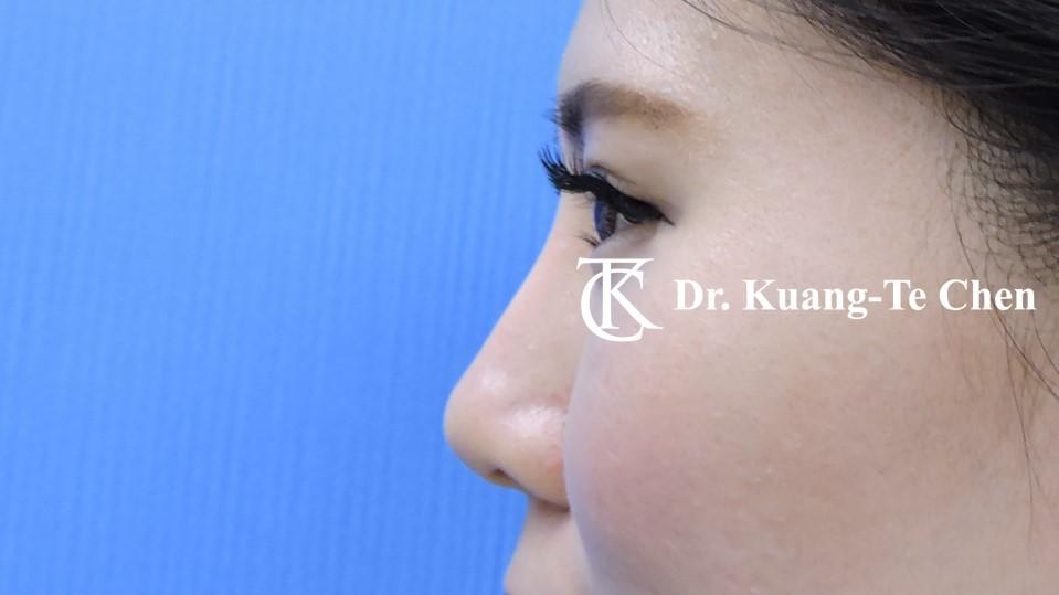 韓式結構式隆鼻 case 1 術後-2