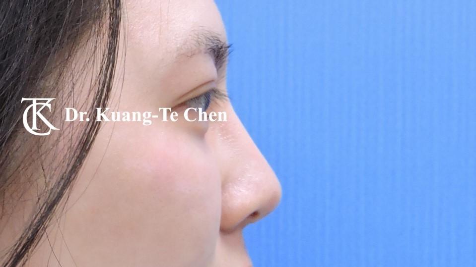 韓式結構式隆鼻 case 3 術後-2