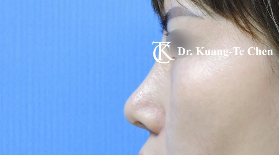 二次隆鼻 Case 1 術後-6