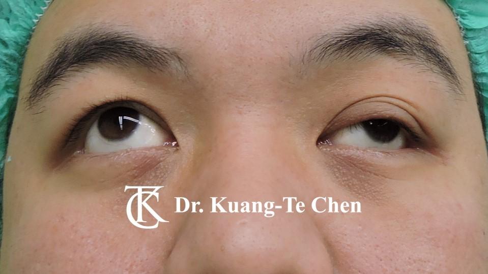 左側中度提眼瞼肌無力術前上看照9