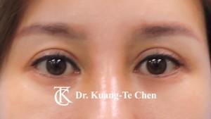 雙眼皮重修術後5