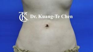 抽脂腰腹環抽術後5