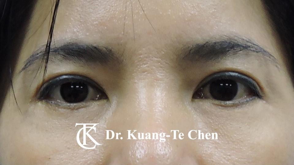 眼袋外開脂肪下推+割雙眼皮Case 2 術後2年-1