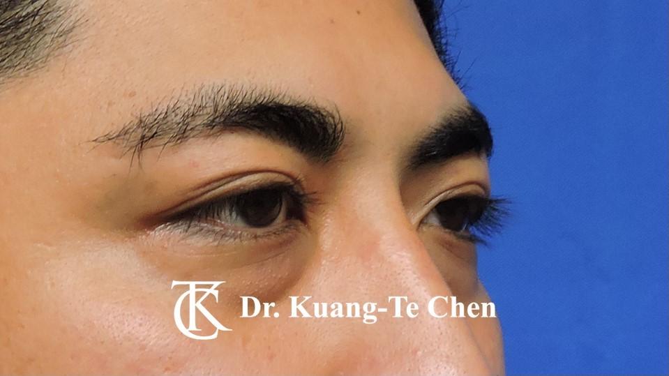 眼袋內開淚溝補脂Case 1 術前-2