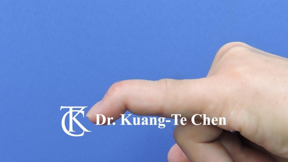 鎚狀指手術Case 3 術前-1