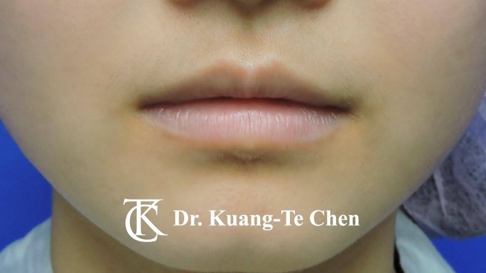 Case 6 上唇及下唇唇珠手術前-1