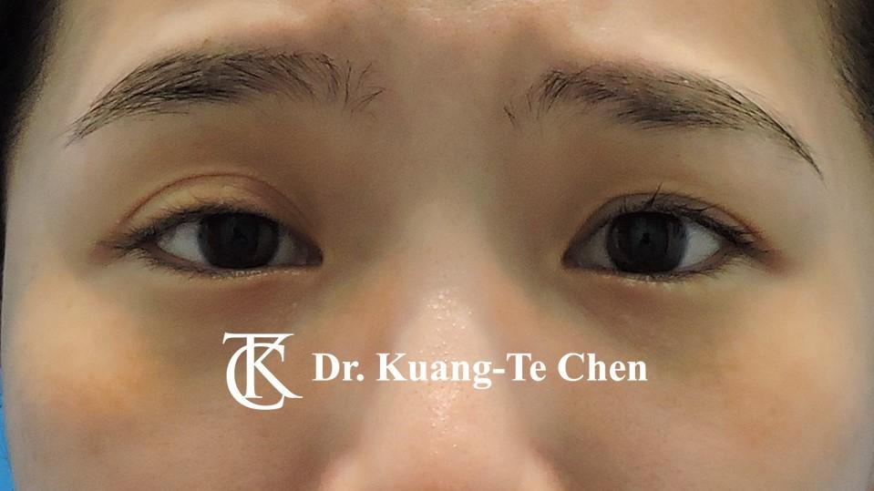 右側輕度提眼瞼肌無力術前4