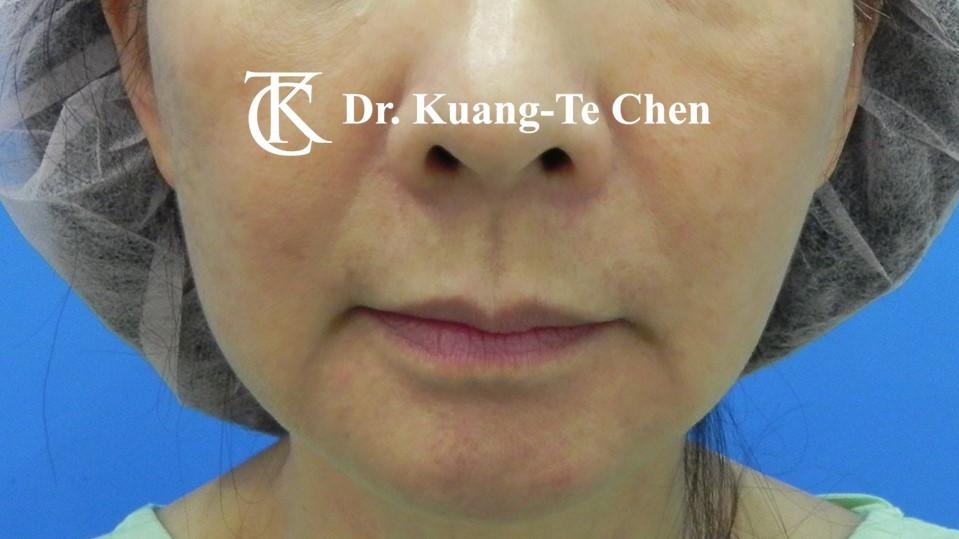 嘴邊下垂輪廓線微創雷射溶脂手術陳廣得醫師Case1 術前 -2