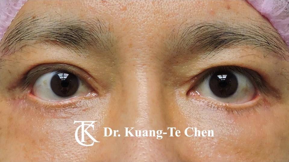 眼瞼外翻矯正手術陳廣得整形外科醫師Case1術前-1