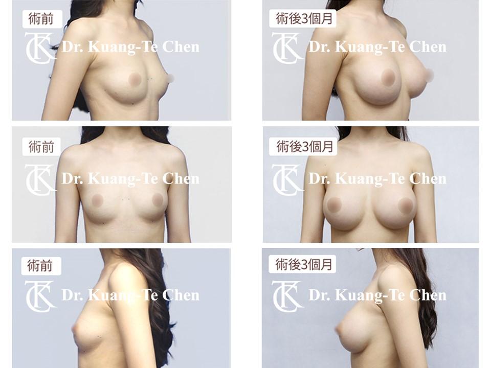 內視鏡果凍矽膠隆乳陳廣得醫師