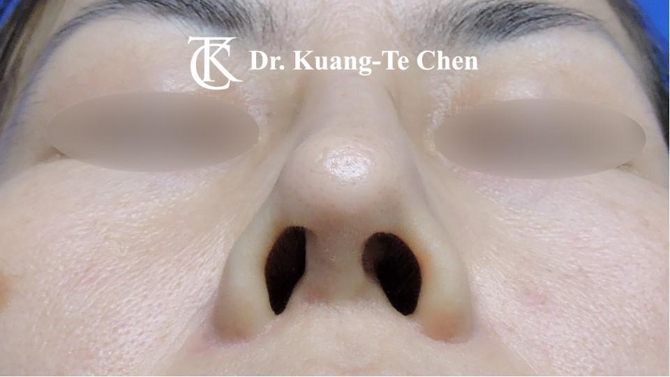 二次隆鼻 Case 1 術前-2