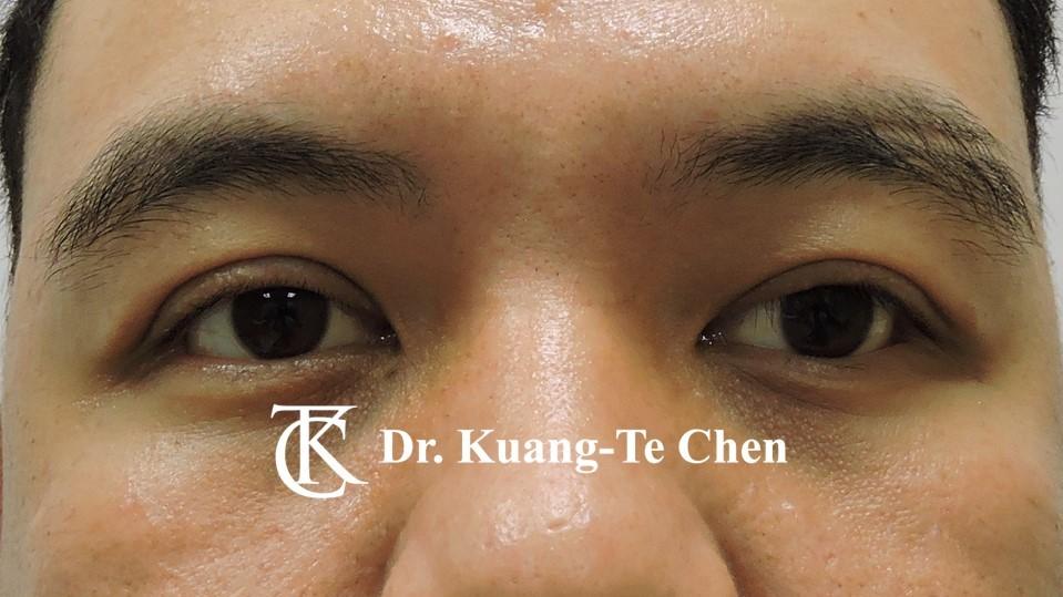 左側中度提眼瞼肌無力術後9