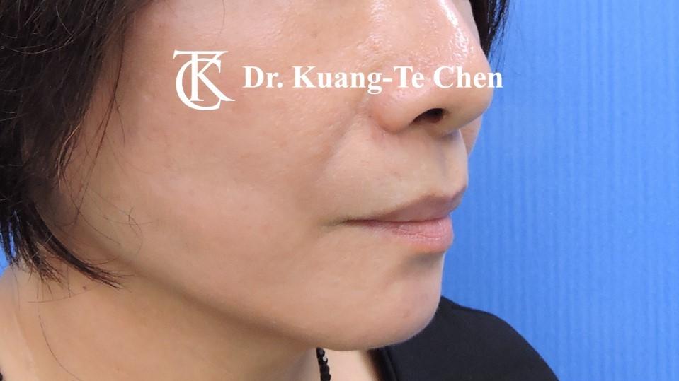中臉拉皮手術 陳廣得醫師專業拉皮 Case 2 術後-3