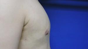 嚴重男性女乳症手術術後 陳廣得專業整形 15