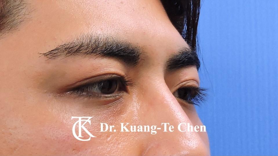 眼袋內開淚溝補脂Case 1 術後-2
