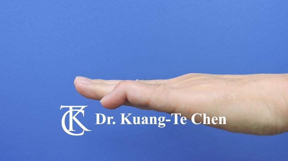 鎚狀指手術Case 3 術前-2