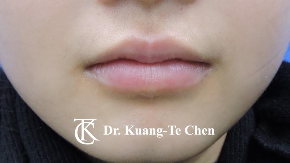 Case 6 上唇及下唇唇珠手術後-1