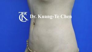 抽脂腰腹環抽術後6