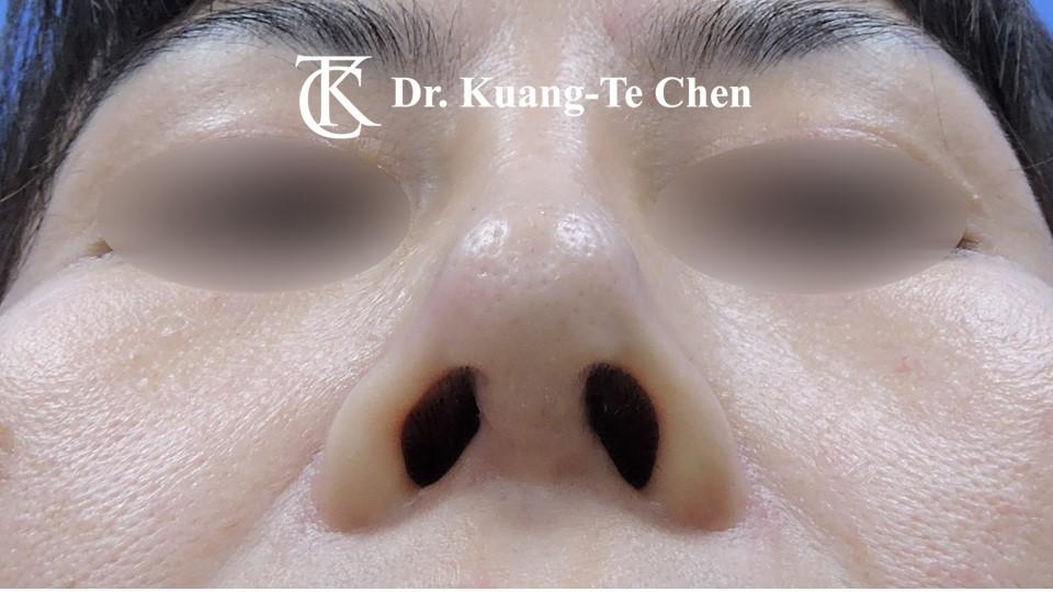 二次隆鼻 Case 1 術後-2