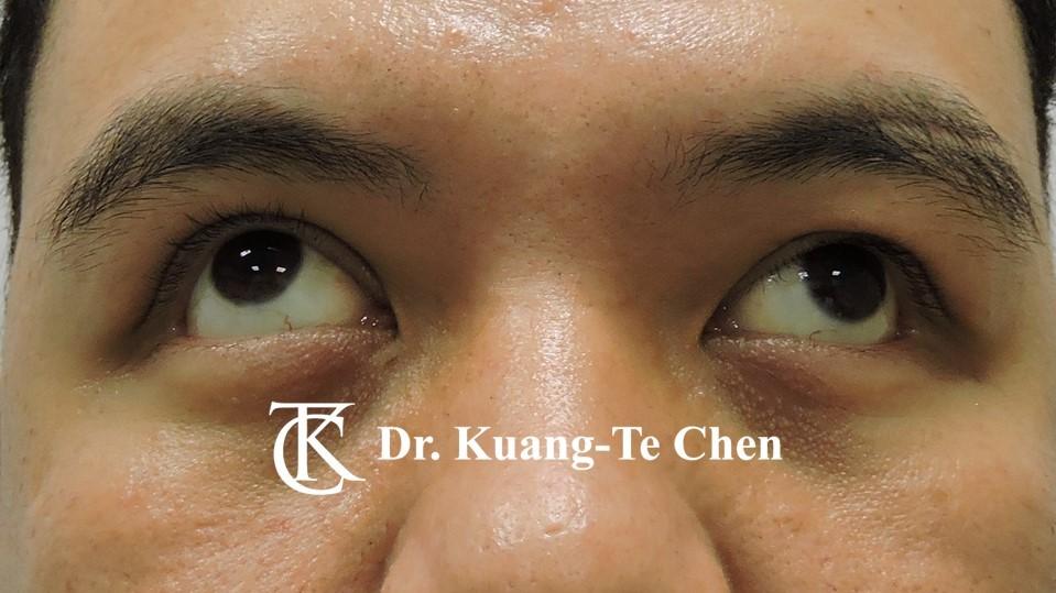 左側中度提眼瞼肌無力術後上看照9
