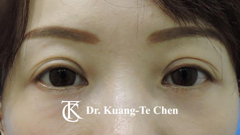 眼袋外開脂肪下推Case 3 術後三個月-1