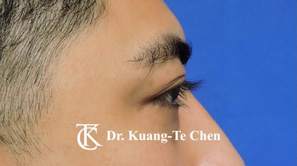 眼袋內開淚溝補脂Case 1 術前-3