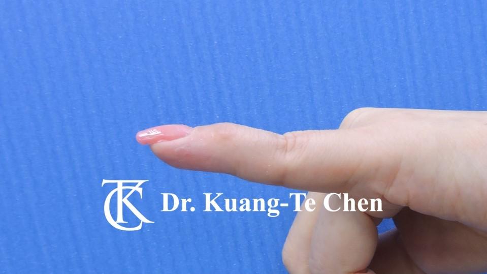 鎚狀指手術Case 3 術後-1