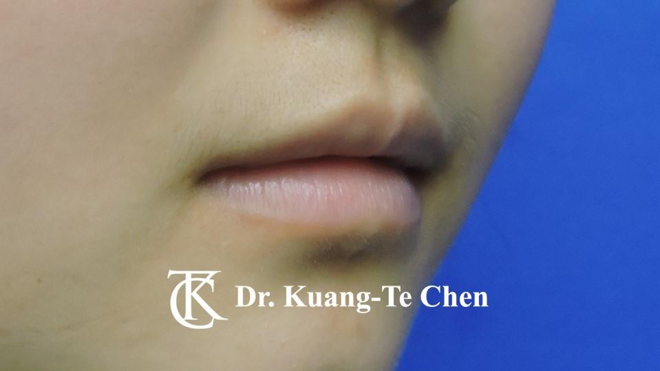 Case 6 上唇及下唇唇珠手術前-2