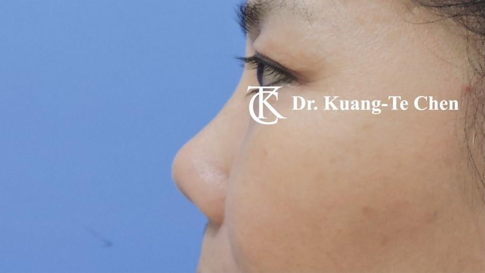 二次隆鼻 Case 3 術前-2