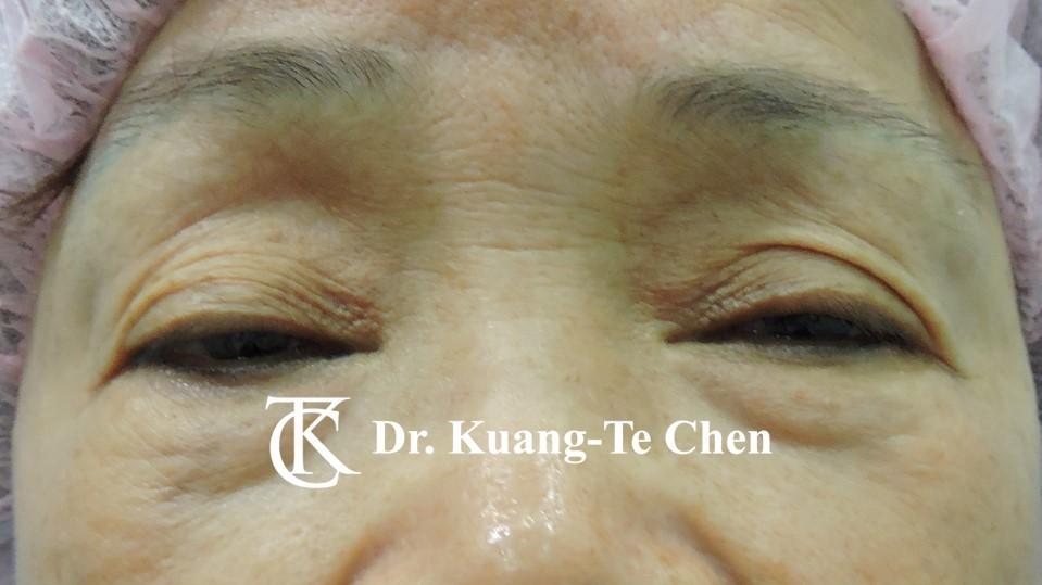 雙側重度提眼瞼肌無力術前10