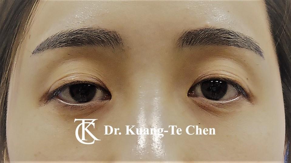 雙側提眼瞼肌無力術前1